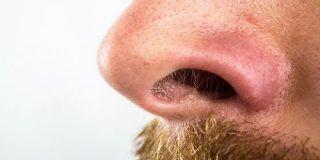 18年前に鼻の穴に隠したマリファナが石となって発掘される - GIGAZINE