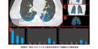 富士フイルム、新型コロナ肺炎の診断サポートAI開発へ CT画像を自動解析 - ITmedia