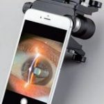 眼科遠隔診療サービス提供のMITAS Medicalが資金調達、チーム強化やデバイス・AI開発加速 | TechCrunch