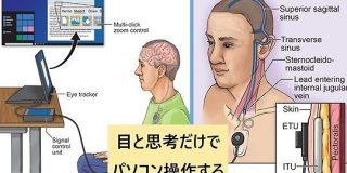 「思考でパソコンを操作可能」にする脳インプラントが登場! - ナゾロジー