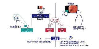 オリンパスやNTTドコモ他3医療機関が4K映像による消化器内視鏡映像のリアルタイム伝送の実証実験に成功 | TechCrunch